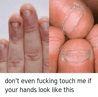 """Ã…¤: Don't even fucking touch me if your hands look like this  @tomfromthebar  HOW HAVE PEOPLE LIKE THIS EVEN MANAGED TO BREED INTO THE 21ST CENTURY.. WHEN PEOPLE LIKE THIS TOUCH YOUR FOOD YOU JUST SAY """"Just keep it, you dick""""..FUCK.. THATS GROSS, I SWEAR IF I WAS ABOUT TO SMASH A 10/10 BUT PEEPED THOSE FINGERS, I WOULD PUNCH HER STRAIGHT IN THE JAW FOR EVEN COMING AT ME WITH THAT NON-SENSE. CALL HER A CAB(SHE'S PAYING) BUT I'D WARN THE CAB DRIVER ABOUT HER FINGERS JUST IN CASE HE AINT WITH IT.. WOULDN'T WANT TO FUCK UP THE DUDE'S NIGHT TOO.. UNFOLLOW ME IF YOURE FINGERS ARE LIKE THIS DONT LIKE MY SHIT WITH THAT BULLSHIT don't even fucking touch me if your hands look like this"""