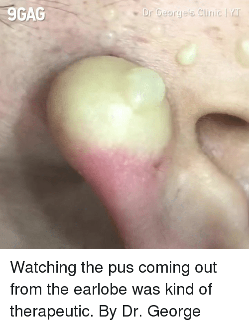 pus: 9GAC  Dr George's Clinic | rr Watching the pus coming out from the earlobe was kind of therapeutic.  By Dr. George 美麗新城診所