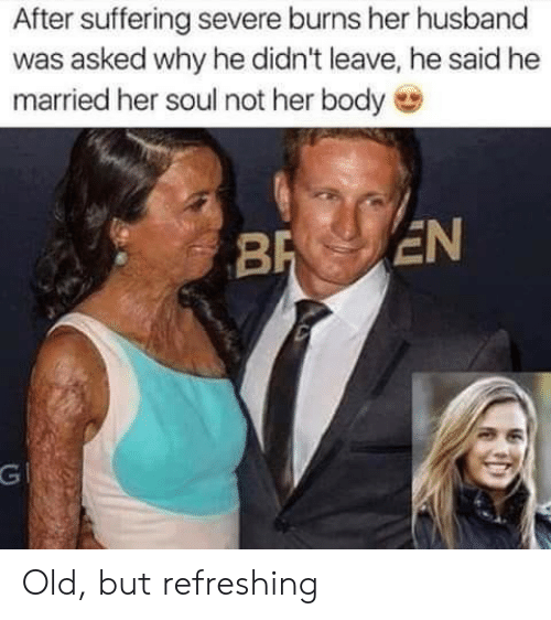 Husband, Old, and Suffering: After suffering severe burns her husband  was asked why he didn't leave, he said he  married her soul not her body  BR EN  G Old, but refreshing