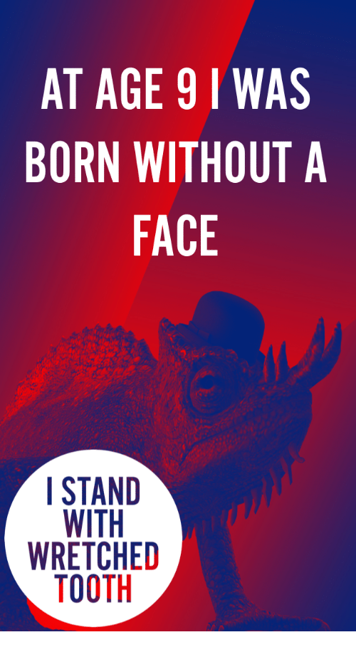 Born Without A Face: AT AGE 91 WAS  BORN WITHOUT A  FACE  STAND  WRETCHED  TOOTH