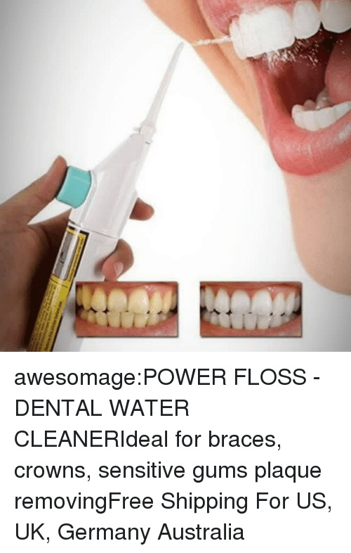 portable: awesomage:POWER FLOSS - DENTAL WATER CLEANERIdeal for braces, crowns, sensitive gums  plaque removingFree Shipping For US, UK, Germany  Australia