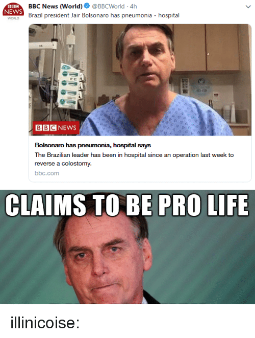 Pro Life: BBC News (World). @BBCWorld-4h  Brazil president Jair Bolsonaro has pneumonia - hospital  NEWS  WORLD  BBCNEWS  Bolsonaro has pneumonia, hospital says  The Brazilian leader has been in hospital since an operation last week to  reverse a colostomy.  bbc.com   CLAIMS TO BE PRO LIFE illinicoise: