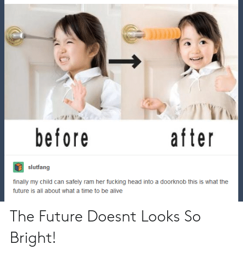 Alive, Fucking, and Future: before  after  slutfang  finally my child can safely ram her fucking head into a doorknob this is what the  future is all about what a time to be alive The Future Doesnt Looks So Bright!