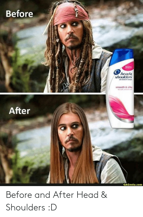 amp: Before and After Head & Shoulders :D