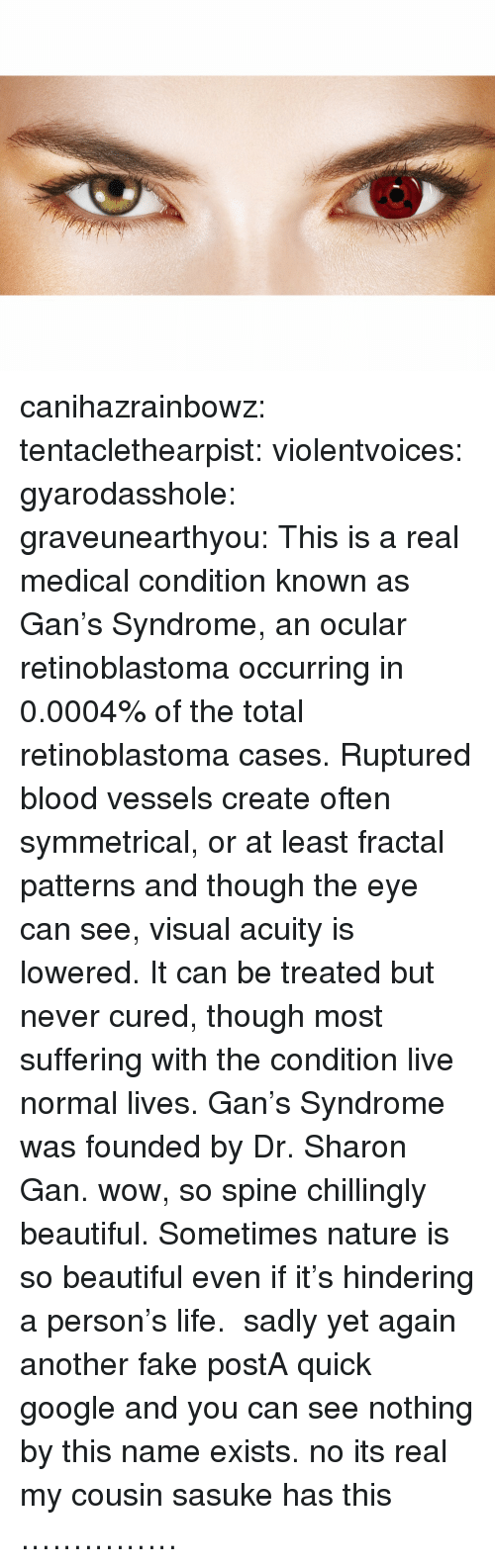 Beautiful, Fake, and Google: canihazrainbowz:  tentaclethearpist:  violentvoices:  gyarodasshole:  graveunearthyou:  This is a real medical condition known as Gan's Syndrome, an ocular retinoblastoma occurring in 0.0004% of the total retinoblastoma cases. Ruptured blood vessels create often symmetrical, or at least fractal patterns and though the eye can see, visual acuity is lowered. It can be treated but never cured, though most suffering with the condition live normal lives. Gan's Syndrome was founded by Dr. Sharon Gan.  wow, so spine chillingly beautiful. Sometimes nature is so beautiful even if it's hindering a person's life.  sadly yet again another fake postA quick google and you can see nothing by this name exists.  no its real my cousin sasuke has this  ……………