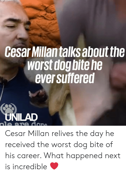 Dank, Dope, and The Worst: Cesar Millantalks about the  worst dog bite he  ever suffered  UNILAD  ale are dope Cesar Millan relives the day he received the worst dog bite of his career. What happened next is incredible ❤️️