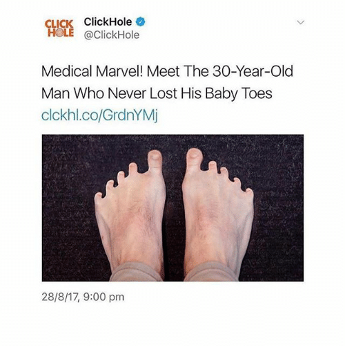 30 Years Old: CLICK ClickHole  HOLE @ClickHole  Medical Marvel! Meet The 30-Year-Old  Man Who Never Lost His Baby Toes  clckhl.co/GrdnYMj  28/8/17, 9:00 pm