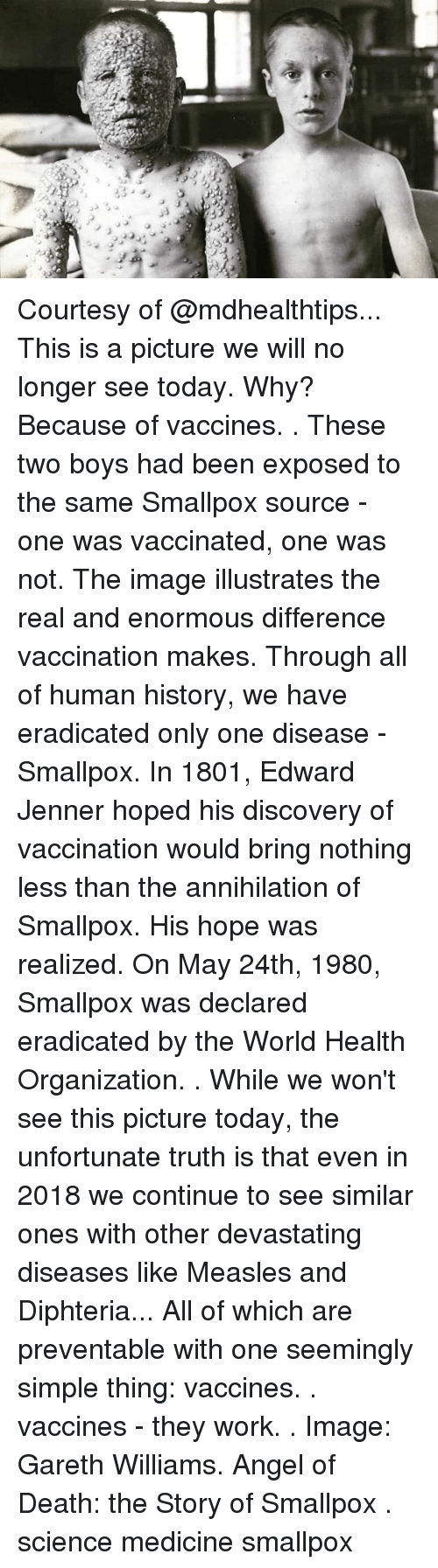 Memes, Work, and Angel: Courtesy of @mdhealthtips... This is a picture we will no longer see today. Why? Because of vaccines. . These two boys had been exposed to the same Smallpox source - one was vaccinated, one was not. The image illustrates the real and enormous difference vaccination makes. Through all of human history, we have eradicated only one disease - Smallpox. In 1801, Edward Jenner hoped his discovery of vaccination would bring nothing less than the annihilation of Smallpox. His hope was realized. On May 24th, 1980, Smallpox was declared eradicated by the World Health Organization. . While we won't see this picture today, the unfortunate truth is that even in 2018 we continue to see similar ones with other devastating diseases like Measles and Diphteria... All of which are preventable with one seemingly simple thing: vaccines. . vaccines - they work. . Image: Gareth Williams. Angel of Death: the Story of Smallpox . science medicine smallpox