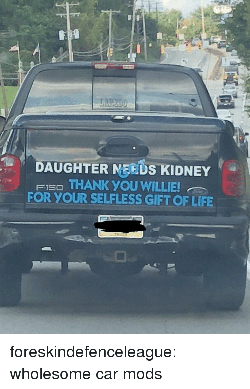 willie: DAUGHTER MEEDS KIDNEY  FI5O THANK YOU WILLIE  FOR YOUR SELFLESS GIFT OF LIFE foreskindefenceleague: wholesome car mods