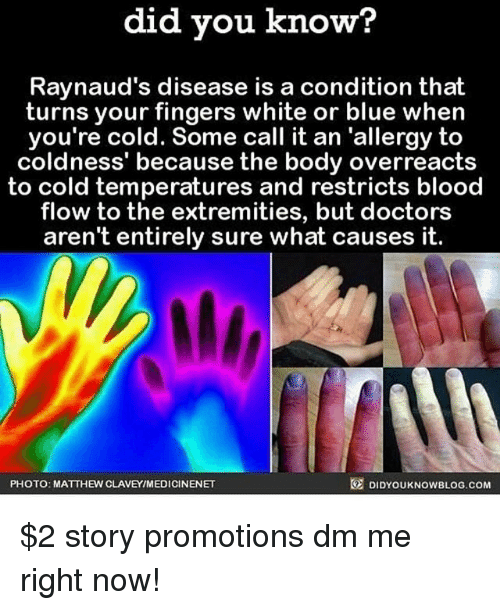 Memes, Blue, and White: did you know?  Raynaud's disease is a condition that  turns your fingers white or blue when  you're cold. Some call it an 'allergy to  coldness' because the body overreacts  to cold temperatures and restricts blood  flow to the extremities, but doctors  aren't entirely sure what causes it.  PHOTO: MATTHEW CLAVEYIMEDICINENET  DIDYOUKNOWBLOG.COM $2 story promotions dm me right now!