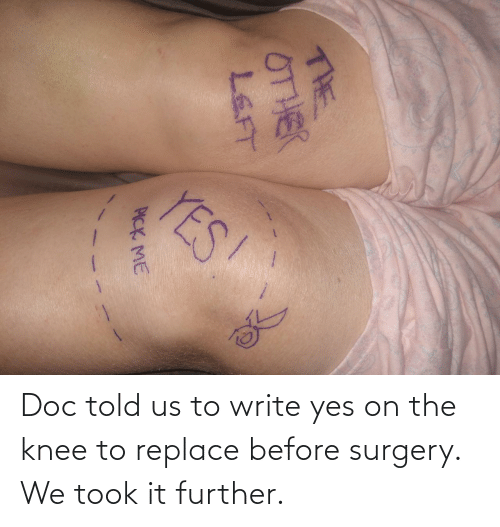 further: Doc told us to write yes on the knee to replace before surgery. We took it further.