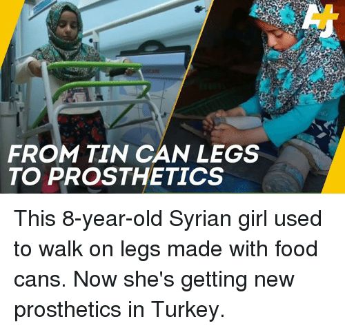Syrian: FROM TIN CAN LEGS  TO PROSTHETICS This 8-year-old Syrian girl used to walk on legs made with food cans. Now she's getting new prosthetics in Turkey.