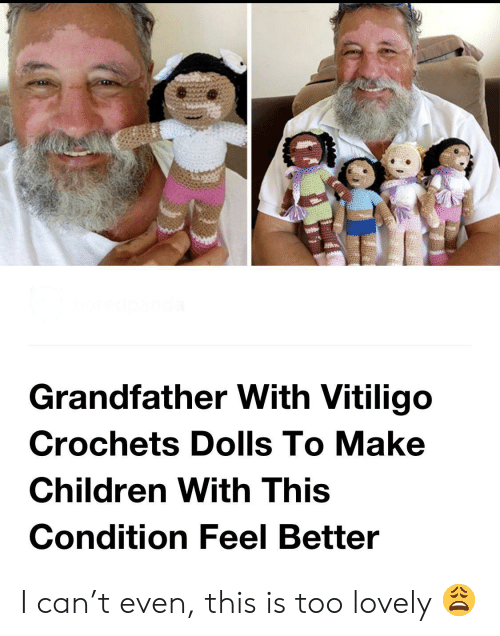dolls: Grandfather With Vitiligo  Crochets Dolls To Make  Children With This  Condition Feel Better I can't even, this is too lovely 😩