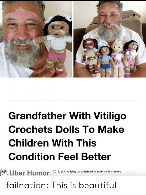 dolls: Grandfather With Vitiligo  Crochets Dolls To Make  Children With This  Condition Feel Better  2013, still no flying cars. Instead, blankets with sleeves.  Uber Humor failnation:  This is beautiful