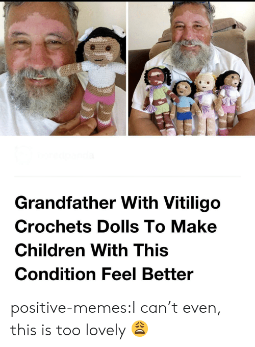 dolls: Grandfather With Vitiligo  Crochets Dolls To Make  Children With This  Condition Feel Better positive-memes:I can't even, this is too lovely 😩