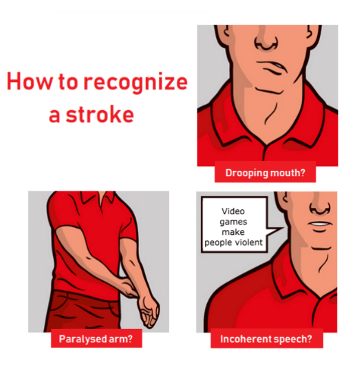 Video Games, Games, and How To: How to recognize  a stroke  Drooping mouth?  Video  games  make  people violent  Paralysed arm?  Incoherent speech?