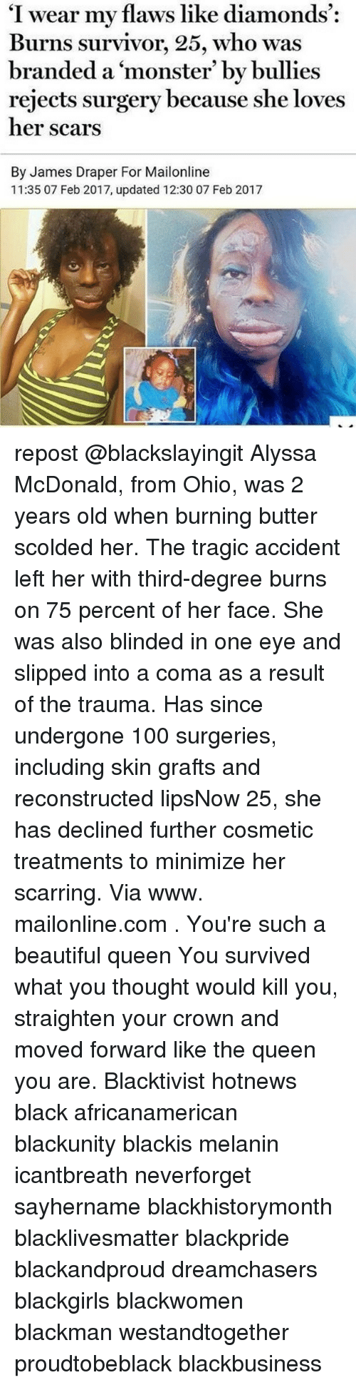 "survivalism: ""I wear my flaws like diamonds  Burns survivor, 25, who was  branded a monster' by bullies  rejects surgery because she loves  her scars  By James Draper For Mailonline  11:35 07 Feb 2017, updated 12:30 07 Feb 2017 repost @blackslayingit Alyssa McDonald, from Ohio, was 2 years old when burning butter scolded her. The tragic accident left her with third-degree burns on 75 percent of her face. She was also blinded in one eye and slipped into a coma as a result of the trauma. Has since undergone 100 surgeries, including skin grafts and reconstructed lipsNow 25, she has declined further cosmetic treatments to minimize her scarring. Via www. mailonline.com . You're such a beautiful queen You survived what you thought would kill you, straighten your crown and moved forward like the queen you are. Blacktivist hotnews black africanamerican blackunity blackis melanin icantbreath neverforget sayhername blackhistorymonth blacklivesmatter blackpride blackandproud dreamchasers blackgirls blackwomen blackman westandtogether proudtobeblack blackbusiness"