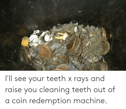 Teeth Out: I'll see your teeth x rays and raise you cleaning teeth out of a coin redemption machine.