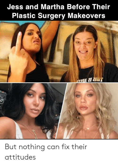 Martha: Jess and Martha Before Their  Plastic Surgery Makeovers But nothing can fix their attitudes