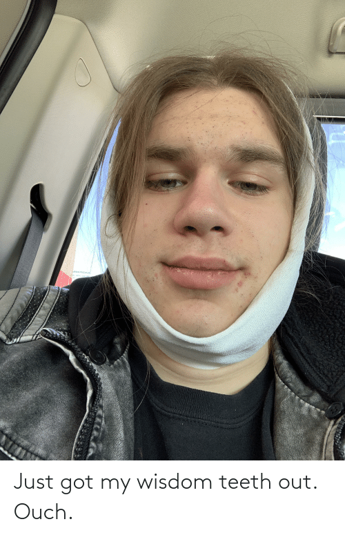 Teeth Out: Just got my wisdom teeth out. Ouch.