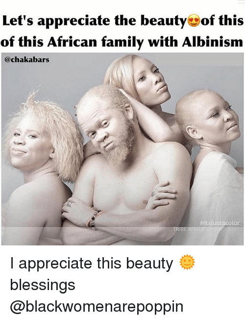 albinism: Let's appreciate the beauty of this  of this African family with Albinism  akabars  Hitsjustacolor  TRIB I appreciate this beauty 🌞blessings @blackwomenarepoppin