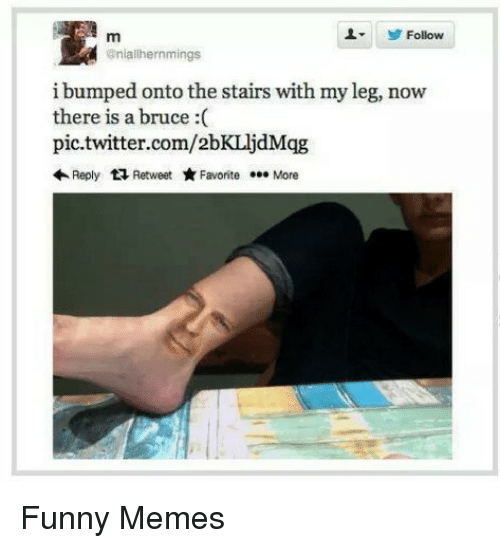 Funny, Memes, and Twitter: LFollow  @nialhernmings  i bumped onto the stairs with my leg, now  there is a bruce :(  pic.twitter.com/2bKLljdMqg  Reply 다 Retweet ★ Favorite  More Funny Memes