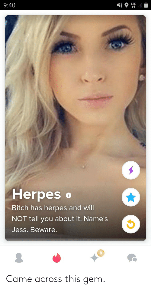 herpes: LTE  9:40  Herpes o  Bitch has herpes and will  NOT tell you about it. Name's  Jess. Beware. Came across this gem.