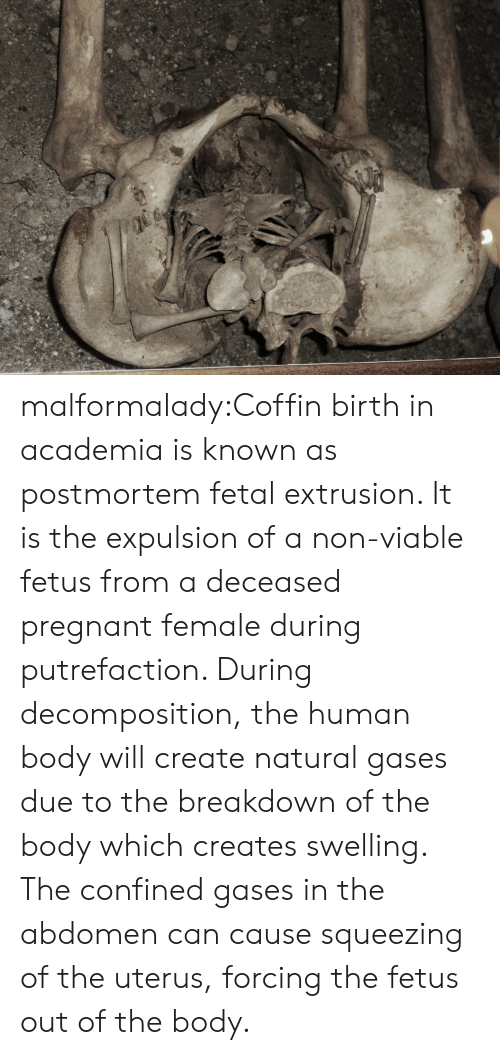 abdomen: malformalady:Coffin birth in academia is known as postmortem fetal extrusion. It is  the expulsion of a non-viable fetus from a deceased pregnant female  during putrefaction. During decomposition, the human body will create  natural gases due to the breakdown of the body which creates swelling.  The confined gases in the abdomen can cause squeezing of the uterus,  forcing the fetus out of the body.