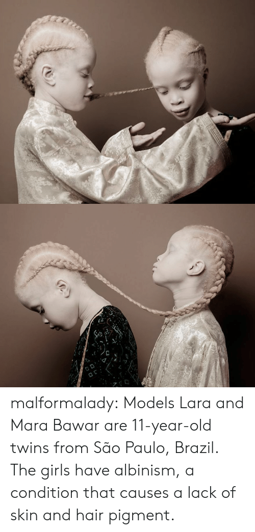 albinism: malformalady:  Models Lara and Mara Bawar are 11-year-old twins from São Paulo, Brazil. The girls have albinism, a  condition that causes a lack of skin and hair pigment.