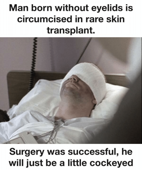 Dank, 🤖, and Rare: Man born without eyelids is  circumcised in rare skin  transplant.  Surgery was successful, he  will just be a little cockeyed