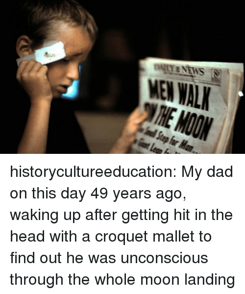 Getting Hit: MEN WAL historycultureeducation:  My dad on this day 49 years ago, waking up after getting hit in the head with a croquet mallet to find out he was unconscious through the whole moon landing