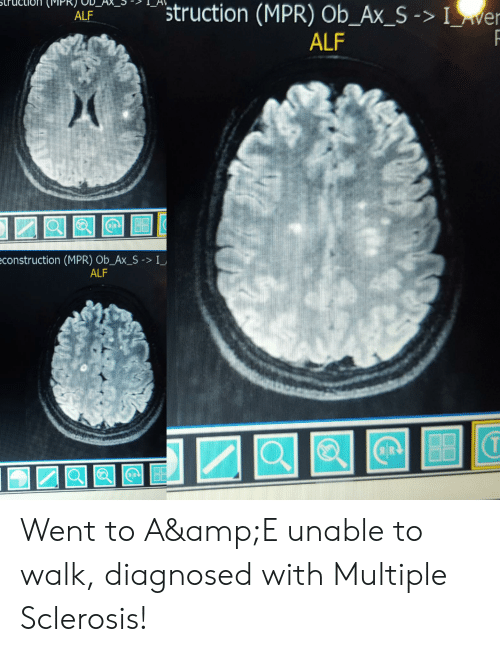 """Construction, Multiple Sclerosis, and Alf: 