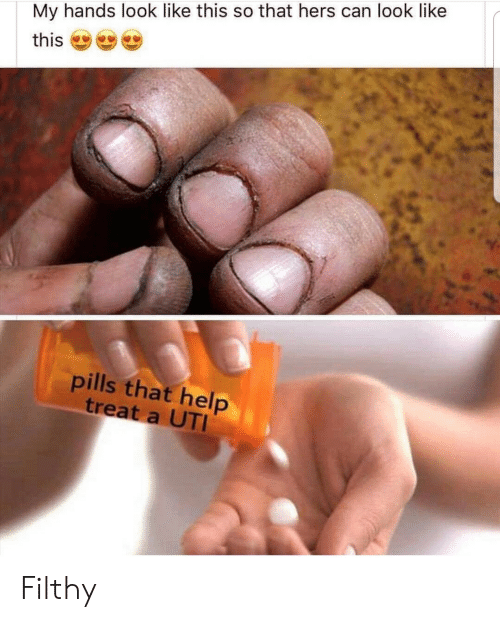 uti: My hands look like this so that hers can look like  this  pills that help  treat a UTI Filthy