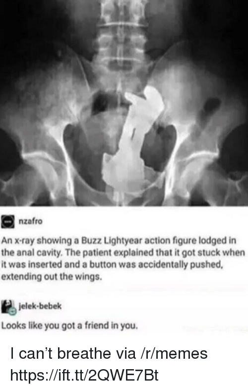 cavity: nzafro  An x-ray showing a Buzz Lightyear action figure lodged in  the anal cavity. The patient explained that it got stuck when  it was inserted and a button was accidentally pushed,  extending out the wings.  jelek-bebek  Looks like you got a friend in you. I can't breathe via /r/memes https://ift.tt/2QWE7Bt