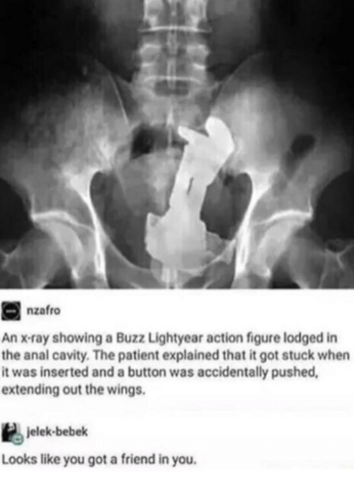 Buzz Lightyear: nzafro  An x-ray showing a Buzz Lightyear action figure lodged in  the anal cavity. The patient explained that it got stuck when  it was inserted and a button was accidentally pushed  extending out the wings.  jelek-bebek  Looks like you got a friend in you.