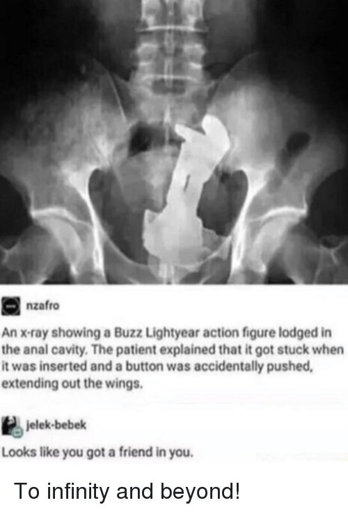 cavity: nzafro  An x-ray showing a Buzz Lightyear action figure lodged in  the anal cavity. The patient explained that it got stuck when  it was inserted and a button was accidentally pushed  extending out the wings.  jelek-bebek  Looks like you got a friend in you. To infinity and beyond!