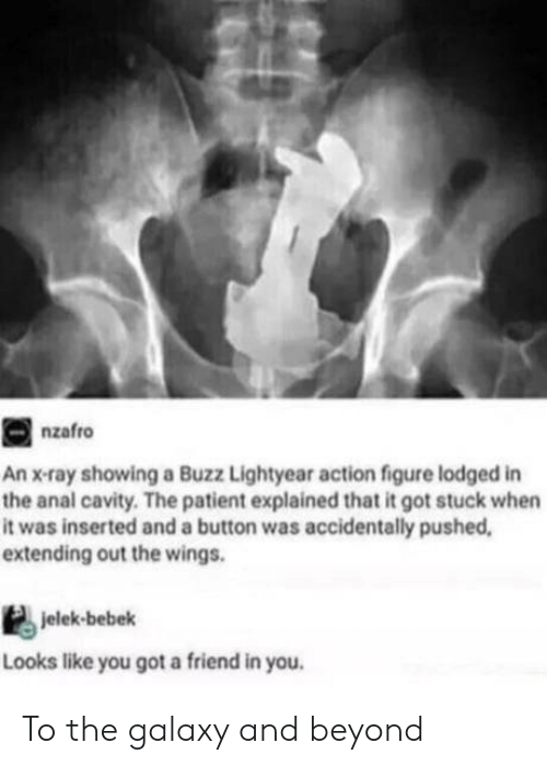 Buzz Lightyear: nzafro  An x-ray showing a Buzz Lightyear action figure lodged in  the anal cavity. The patient explained that it got stuck when  it was inserted and a button was accidentally pushed  extending out the wings.  jelek-bebek  Looks like you got a friend in you To the galaxy and beyond