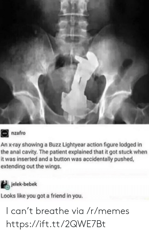 Buzz Lightyear: nzafro  An x-ray showing a Buzz Lightyear action figure lodged in  the anal cavity. The patient explained that it got stuck when  it was inserted and a button was accidentally pushed,  extending out the wings.  jelek-bebek  Looks like you got a friend in you. I can't breathe via /r/memes https://ift.tt/2QWE7Bt