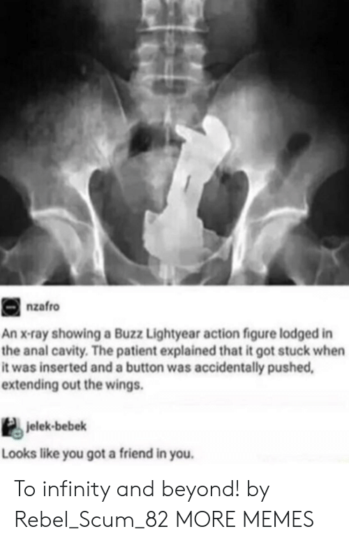 Buzz Lightyear: nzafro  An x-ray showing a Buzz Lightyear action figure lodged in  the anal cavity. The patient explained that it got stuck when  it was inserted and a button was accidentally pushed  extending out the wings.  jelek-bebek  Looks like you got a friend in you. To infinity and beyond! by Rebel_Scum_82 MORE MEMES