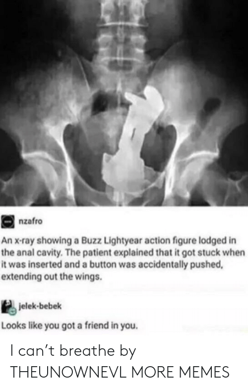 Buzz Lightyear: nzafro  An x-ray showing a Buzz Lightyear action figure lodged in  the anal cavity. The patient explained that it got stuck when  it was inserted and a button was accidentally pushed,  extending out the wings.  jelek-bebek  Looks like you got a friend in you. I can't breathe by THEUNOWNEVL MORE MEMES