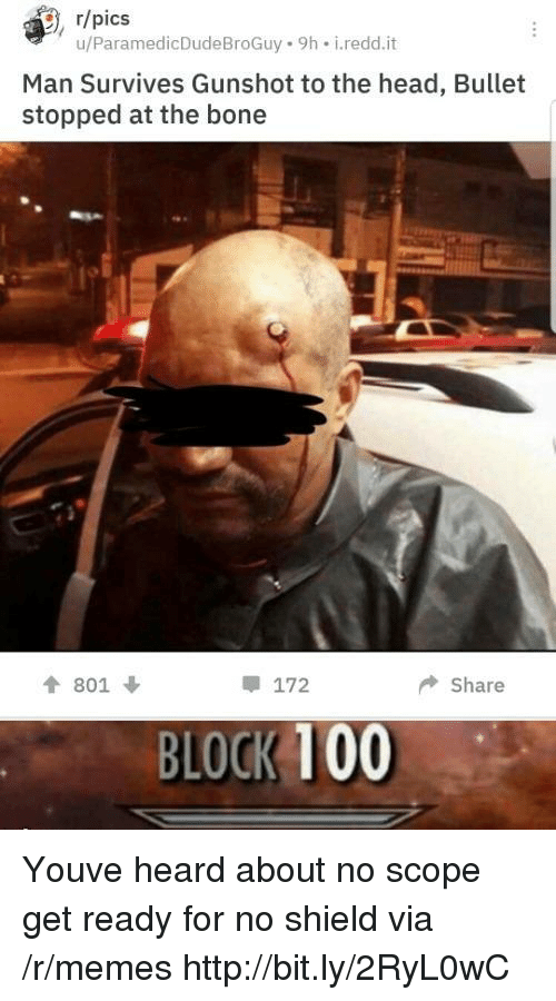Anaconda, Head, and Memes: , r/pics  u/ParamedicDudeBroGuy 9h i.redd.it  Man Survives Gunshot to the head, Bullet  stopped at the bone  會801 ↓  172  ◆ Share  BLOCK 100 Youve heard about no scope get ready for no shield via /r/memes http://bit.ly/2RyL0wC