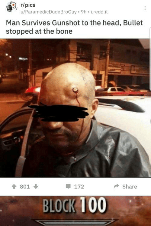 Head, Bone, and Man: r/pics  u/ParamedicDudeBroGuy 9h i.redd.it  Man Survives Gunshot to the head, Bullet  stopped at the bone  172  Share  801  BLOCK 100