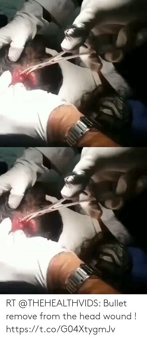 Bullet: RT @THEHEALTHVIDS: Bullet remove from the head wound ! https://t.co/G04XtygmJv