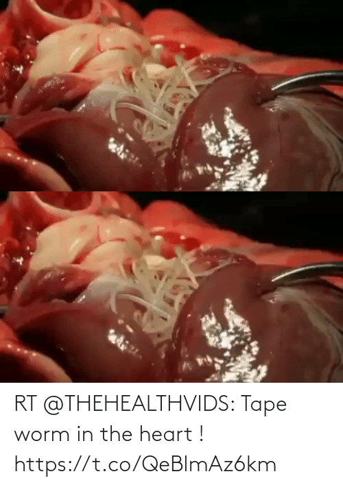 worm: RT @THEHEALTHVIDS: Tape worm in the heart ! https://t.co/QeBlmAz6km
