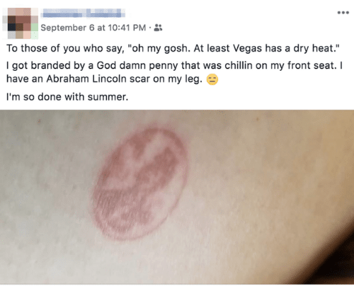 "Abraham Lincoln, God, and Las Vegas: September 6 at 10:41 PM-  To those of you who say, ""oh my gosh. At least Vegas has a dry heat.""  I got branded by a God damn penny that was chillin on my front seat. I  have an Abraham Lincoln scar on my leg. E  I'm so done with summer."