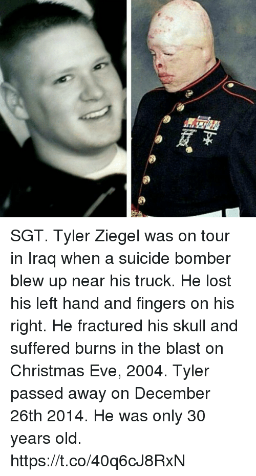 Suicide Bomber: SGT. Tyler Ziegel was on tour in Iraq when a suicide bomber blew up near his truck. He lost his left hand and fingers on his right. He fractured his skull and suffered burns in the blast on Christmas Eve, 2004. Tyler passed away on December 26th 2014. He was only 30 years old. https://t.co/40q6cJ8RxN