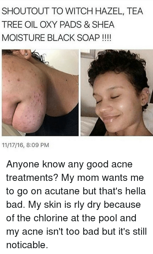 oxy: SHOUTOUT TO WITCH HAZEL, TEA  TREE OIL OXY PADS & SHEA  MOISTURE BLACK SOAP  11/17/16, 8:09 PM Anyone know any good acne treatments? My mom wants me to go on acutane but that's hella bad. My skin is rly dry because of the chlorine at the pool and my acne isn't too bad but it's still noticable.