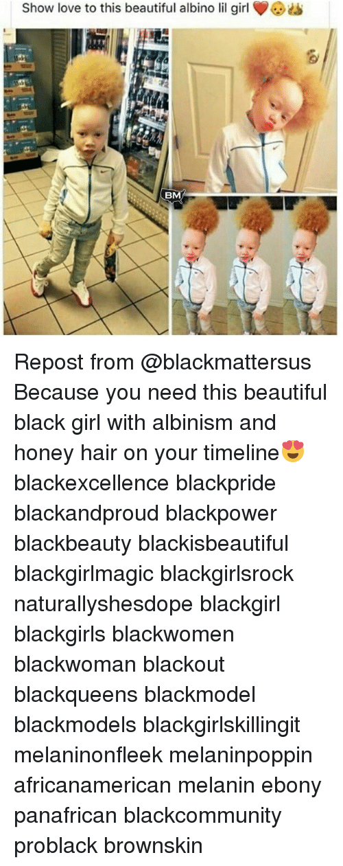 albinism: Show love to this beautiful albino lil girl Repost from @blackmattersus Because you need this beautiful black girl with albinism and honey hair on your timeline😍 blackexcellence blackpride blackandproud blackpower blackbeauty blackisbeautiful blackgirlmagic blackgirlsrock naturallyshesdope blackgirl blackgirls blackwomen blackwoman blackout blackqueens blackmodel blackmodels blackgirlskillingit melaninonfleek melaninpoppin africanamerican melanin ebony panafrican blackcommunity problack brownskin