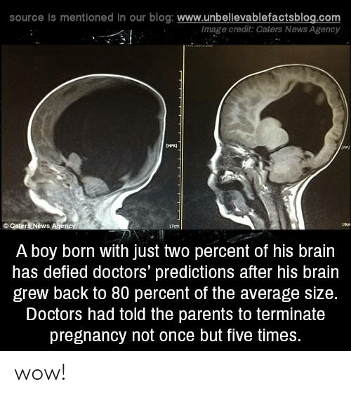 Memes, News, and Parents: source is mentioned in our blog: www.unbellevablefactsblog.com  Image credit: Caters News Agency  ry  o Gater  ews  A boy born with just two percent of his brain  has defied doctors' predictions after his brain  grew back to 80 percent of the average size.  Doctors had told the parents to terminate  pregnancy not once but five times. wow!