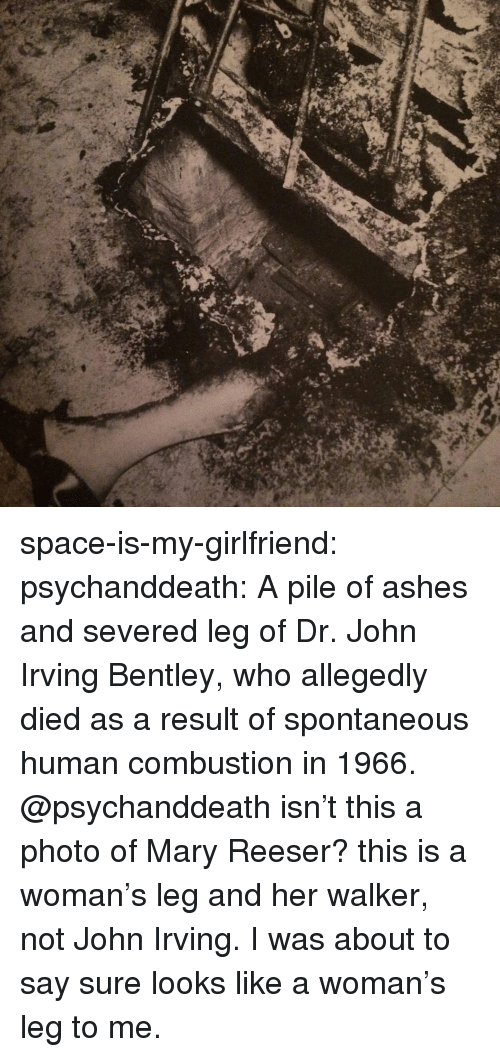 Bentley: space-is-my-girlfriend:  psychanddeath:  A  pile of ashes and severed leg of Dr. John Irving Bentley, who allegedly died as a result of spontaneous human combustion in 1966.    @psychanddeath isn't this a photo of Mary Reeser? this is a woman's leg and her walker, not John Irving.   I was about to say sure looks like a woman's leg to me.